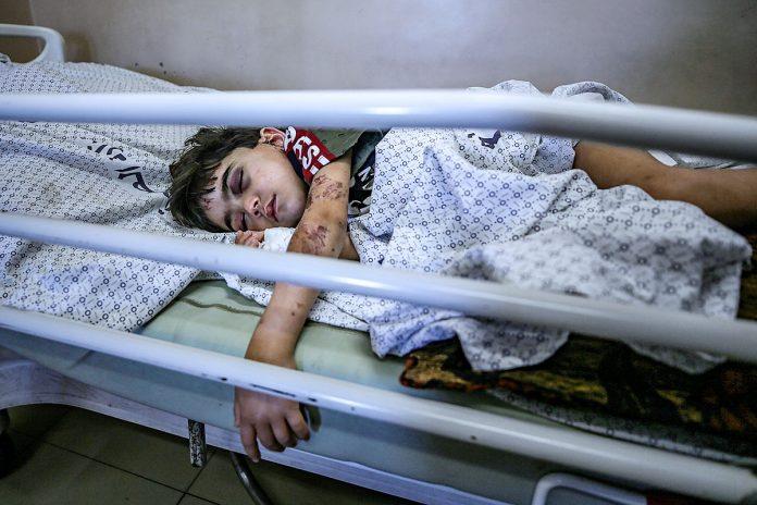 niño palestino herido en Gaza