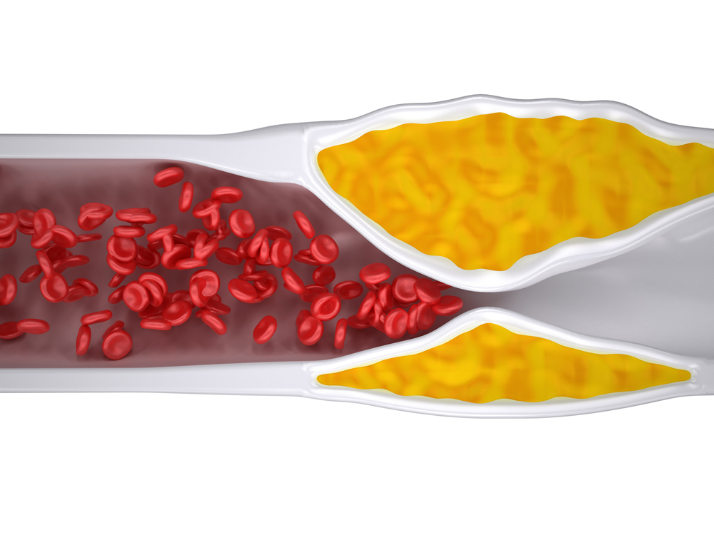 Clogged artery by cholesterol